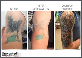 unwanted ink laser tattoo removal laser tattoo removal sydney blog
