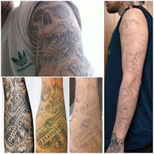how much does it cost to remove a full sleeve tattoo lasered bio