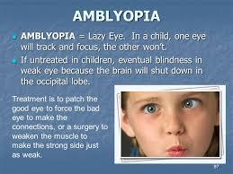 Can Laser Eye Surgery Make You Blind Eye Ppt Download