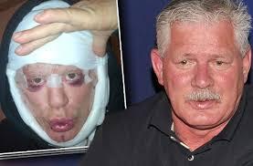 Lenny Dykstra Has Podunk Doc - celebrities for lenny dykstra celebrities www celebritypix us