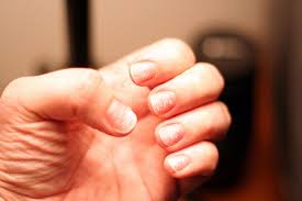 how to heal nails after artificial nail treatments beautylish