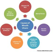 home remedies do u0027s and don u0027ts for mouth ulcers