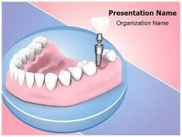 dental templates for powerpoint free download download our professionally designed dental implant ppt template
