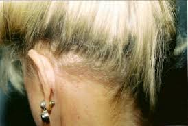 hairstyles that cover face lift scars womens gallery 5