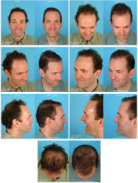 hair transplant month by month pictures where else i looked my follicular journey