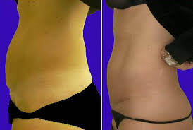 stomach muscles after c section c section scar treatment boston boston plastic surgery specialists