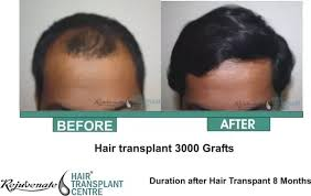 how thick is 1000 hair graft which is the best hair transplant clinic in surat quora