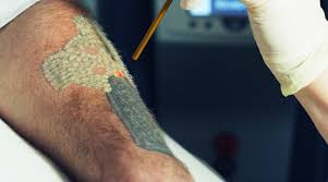 adding tattoo removal to your existing practice