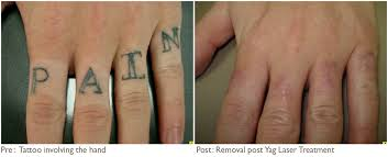 hand tattoo removal before and after jpg hand tattoo removal