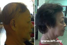 percentae of men with thinning hair at 60 about hair loss hair growth malaysia