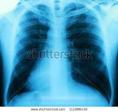 Radiology Of Thorax Lung X Ray Stock Photos Royalty Free Images U0026 Vectors Shutterstock