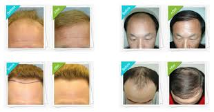 transplant hair second round draft how much does hair transplant cost in australia
