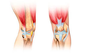 Knees Anatomy Blown Out Knee Joint