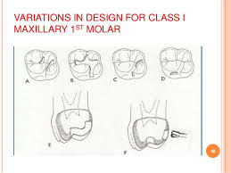 in design class class i cavity preparation