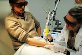 spain tattoo removal training new look laser college