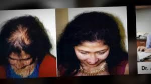 Women Hair Loss Treatment Baldness Female Hair Loss Fue Hair Transplant Dr Ari