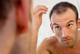men u0027s hair loss treatments and solutions with pictures