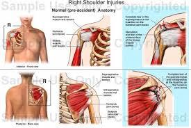 Human Shoulder Diagram Right Shoulder Injuries Medical Illustration Human Anatomy