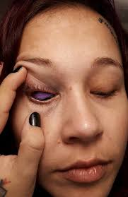 horror eyeball tattoo may ban the procedure in parts of canada