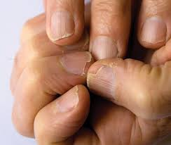dystrophy the condition behind brittle split and fragile nails