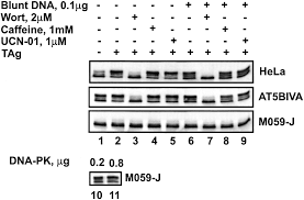 replication protein a2 phosphorylation after dna damage by the