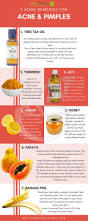 Face Mapping Acne Best 25 Treatment For Pimples Ideas On Pinterest Acne Treatment