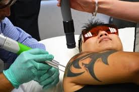 tattoo removal frequently asked questions laser tattoo removal education faqs new look laser college