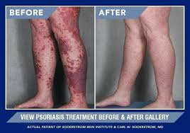 psoriasis and ultraviolet light uv light therapy for psoriasis curvehe top
