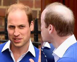 haircuts for crown bald spots hairstyles for thinning hair men