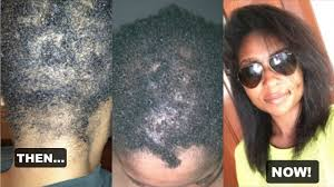 my hair loss alopecia areata jamexicanbeauty youtube