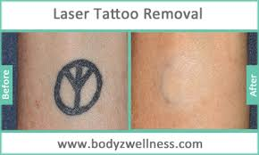 permanent laser tattoo removal treatment in mumbai india