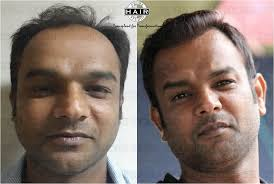 india hair hair transplant india hair fall clinic in mumbai prime hair studio