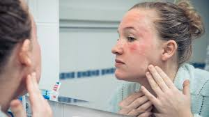 Red Flaky Skin Around Nose And Eyebrows Common Skin Rashes Skin And Beauty Center Everyday Health