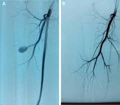 false aneurysm of perforating branch of the deep femoral artery