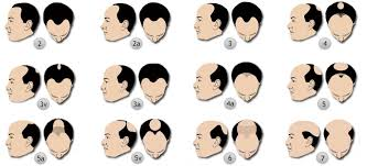 types of hair lines alopecia trichotillomania male and female hair loss