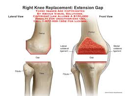 Right Knee Anatomy 14102 03a Right Knee Replacement Extension Gap U2013 Anatomy Exhibits