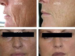 light therapy for skin omnilux skin therapy leaders in light therapy