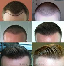 hair transplant month by month pictures hair restoration procedure before and after photographs with 2033