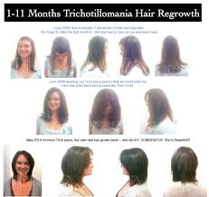 hair styles for trichotellamania stop waiting for a trichotillomania cure