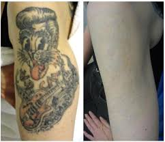 free tattoo removal az tattoo collection