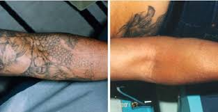 tattoo removal before and after in naples florida skin deep naples