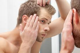 dealing with male hair loss