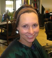 headbands for hair thinning meet aimee a viable solution for pcos hair loss pcos diva