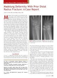 Madelung Deformity With Prior Distal Radius Fracture  A Case     Yumpu