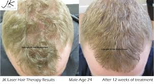 laser hair therapy for hair regrowth for hair thinning by jk hair