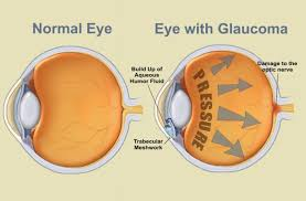 What Causes Eye Blindness Glaucoma Bright Vision Optometry Of Chino Hills California