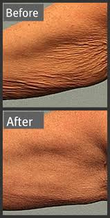 Pumpkin Enzyme Peel Before And After by 45 Best Acne Assassin Clearing Up Acne Images On Pinterest
