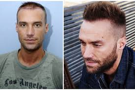best hairtransplant in the world calum best follows wayne rooney and has second hair transplant
