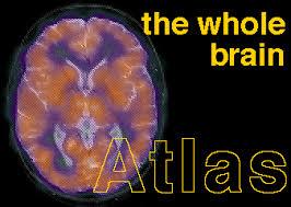 Axial Mri Brain Anatomy The Whole Brain Atlas