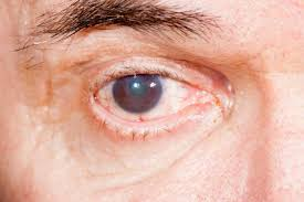 cataracts causes symptoms and treatment